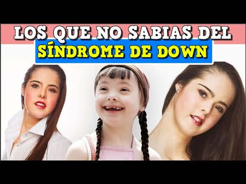 Watch video Curiosidades sobre el síndrome de Down