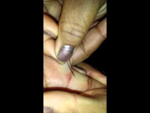 Wife Takes Splinter Out
