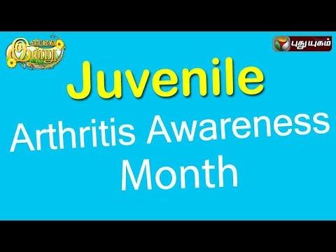 Juvenile Arthritis Awareness Month In Iniyavai Indru - 06/09/2016 I Puthuyugam TV