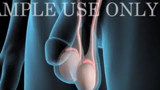 Nonton Medical Animation: Testicular Cancer Film Subtitle Indonesia Streaming Movie Download