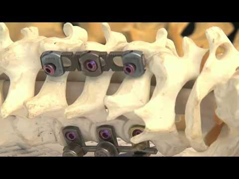 Cirugía de la columna vertebral - Dr Florensa