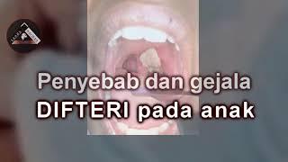 Download Video Penyebab dan gejala difteri pada anak MP3 3GP MP4