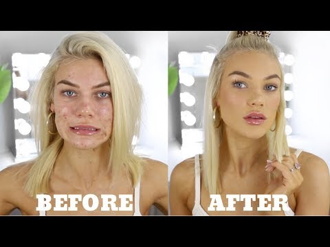 EVERYDAY MAKEUP FOR ACNE PRONE SKIN + Personal Life Update