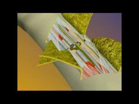 Hand Transplant Surgery Animation