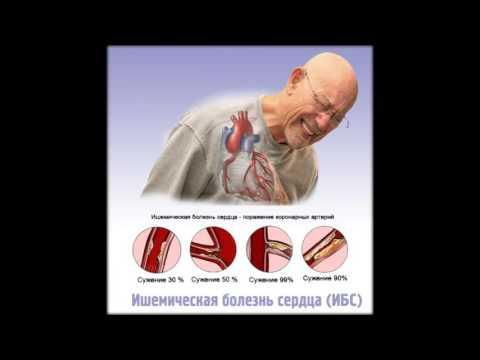 симптомы инфаркта миокарда и ишемической болезни сердца у мужчин
