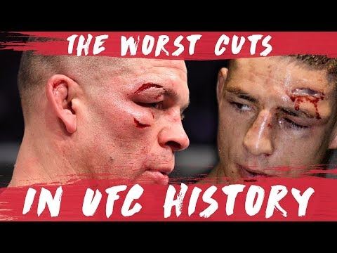 The Worst Cuts in UFC History