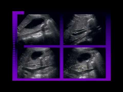Biliary and Pancreatic Abnormalities on Ultrasound