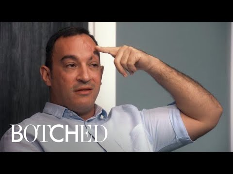 """Man Willing to Do Anything to Fix """"Botched"""" Face 