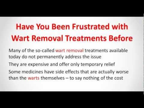 Wart Removal – Remove Warts Naturally