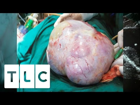 The World's Biggest Cyst   Body Bizarre