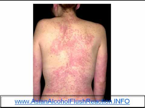 AsianGlow - Do you get Asian Glow and Asian Glow symptoms when you drink alcohol? http://www.asianalcoholflushreaction.info If you have an Asian Glow you will experience...