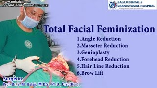 Video Total Facial Feminisation - Dr. S.M Balaji MP3, 3GP, MP4, WEBM, AVI, FLV Februari 2019