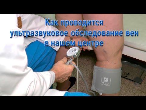 Ультразвуковое дуплексное сканирование вен