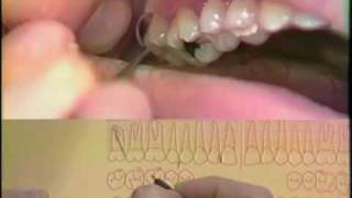 Periodontal Charting Procedure