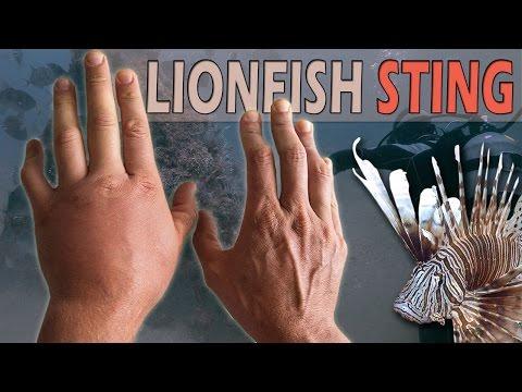 Scuba Diver Stung by Venomous Lionfish Spines On Camera