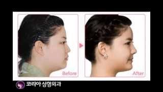 코리아성형외과(korea plasic surgery) 코리아성형외과만의 특화된 얼굴전체성형 K-FACE!! 리얼코리아 이현아 님의 영상리얼스토리 지금시작합니다!