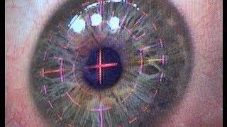 Video The Operation - Eye Witness Laser Eye Surgery Day 1a MP3, 3GP, MP4, WEBM, AVI, FLV Februari 2019