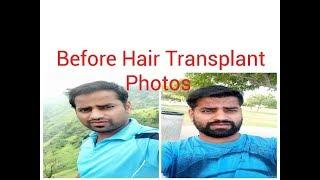 Video Before Hair Transplant photos MP3, 3GP, MP4, WEBM, AVI, FLV Juli 2018