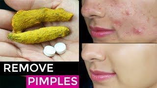 Watch More - https://goo.gl/62tLVQWe all suffer from Pimples so in this video I have shared my secret remedy  which is Easy & Affordable home treatment hat will instantly remove your pimples Overnight.Don't forget to TAG & SHARE it with your friends.PRODUCTS SHOWN IN THIS VIDEO ------------------------------------------------------------Aspirin tablets Raw TurmericWater~ Love♥ Pretty Priya ♥NEW UPLOADS every Monday & Friday!!▷ CONNECT with us!!♥ YOUTUBE - https://www.youtube.com/PrettyPriyaTV♥ FACEBOOK - https://www.facebook.com/PrettyPriyaTV/♥ TWITTER - https://twitter.com/PrettyPriyaTV♥ INSTAGRAM - https://www.instagram.com/PrettyPriyaTV/♥ SNAPCHAT - @PrettyPriyaTV♥ BUSINESS INQUIRY - PrettyPriyaTV@gmail.comAUDIO DISCLAIMER/CREDITS –The background music is either taken from royalty free site and/or from the below sources under proper usage licence specified below –DISCLAIMER: The information provided on this channel and its videos is for general purposes only and should NOT be considered as professional advice. dry skin healthy skin cleansing get rid of acne scars perfect skin pigmentation dark skin