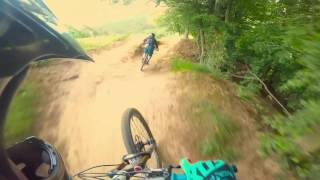 Video Bikepark Kalnica 2017 - Fox line MP3, 3GP, MP4, WEBM, AVI, FLV Juli 2017