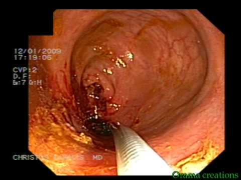 Stent Implantation In Colorectal Stenosis - Cancer