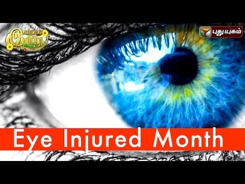 Eye-Injured-Month-in-Iniyavai-Indru--16-07-2016-I-Puthuyugam-TV