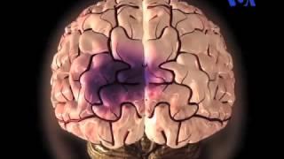 سکته مغزی و راه های پیشگیری و درمان آن