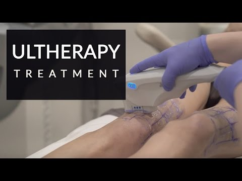Ultherapy for skin tightening | Thigh tightening | Beverly Hills