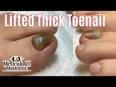 Videos de uñas -  Salon Pedicure Training Prevent Injury to Thick Lifted Toenails