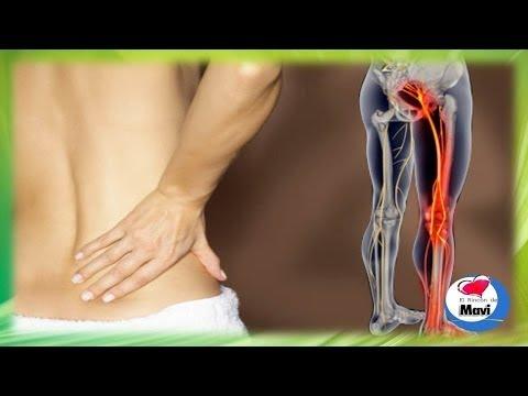 nervio ciático - Como tratar la ciatica o dolor del nervio ciatico con tratamientos naturales. La ciática se define como el dolor o las molestias asociadas con el nervio ciát...