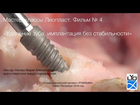 Мастер-класс Лиопласт 4.1 Удаление периодонтит-корня. Имплантация без фиксации