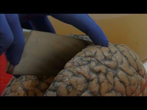 Βέλγιο: Η μεγαλύτερη συλλογή ανθρώπινων εγκεφάλων στον κόσμο