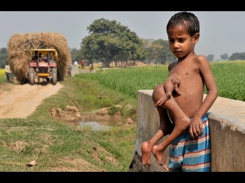 boy - The Boy with 8 Limbs in India: The Boy with 4 arms and 4 legs SUBSCRIBE: http://bit.ly/Oc61Hj He used to be known as