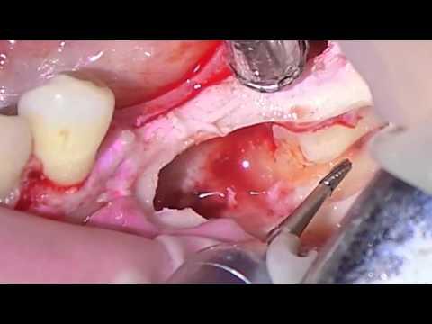 Удаление ретенированных дистопированных зубов нижней челюсти. Часть 2