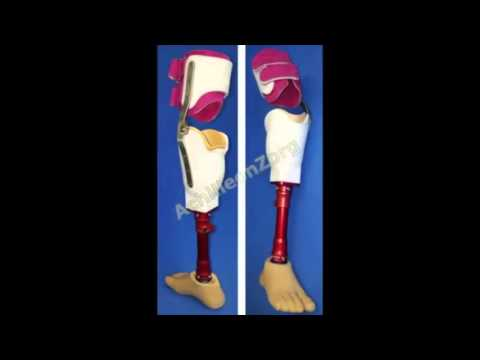 3D printed prosthesis by Oceanz for Achilleon