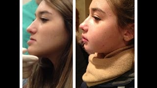 Double Jaw Surgery - my story & tips!