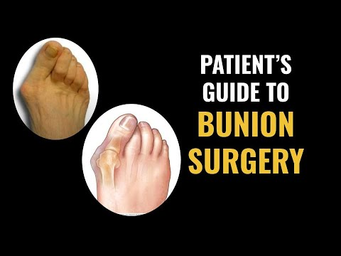 old lady bunions