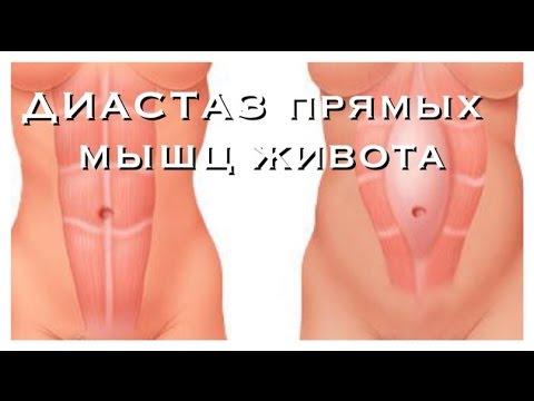 ДИАСТАЗ прямых мышц живота после РОДОВ!