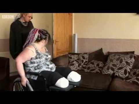 Женщина проходит восстановление после ампутации ног