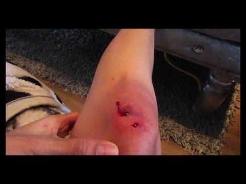 I BROKE MY KNEE! - Vlog 7 -