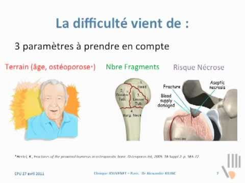 comment soigner fracture trochiter
