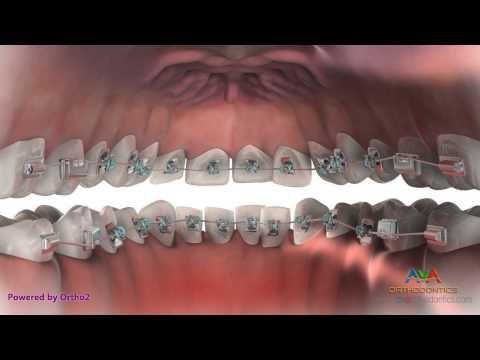 L'orthodontie linguale