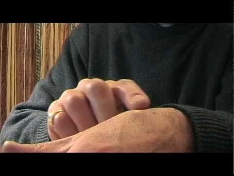 Ganglion cyst and its removal by yourself non-surgically.