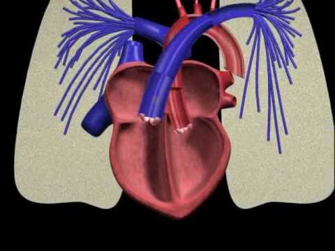 PFO (Patent Foramen Ovale) Closure Procedure