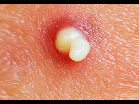 How To Pop A Pimple! (Pimples, Acne, Cyst Popped – Popping) – World's Greatest Medical