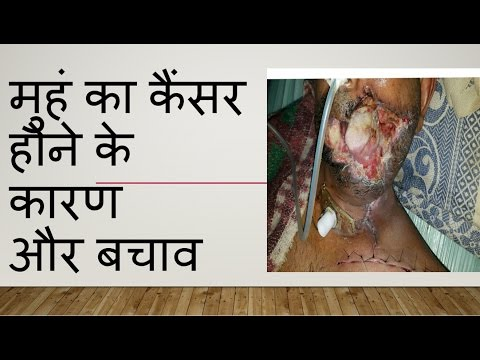 Oral cancer / mouth cancer basic understanding ( in Hindi )