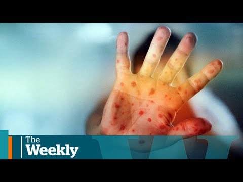 The Anti-vaccine Movement On Social Media | The Weekly With Wendy Mesley