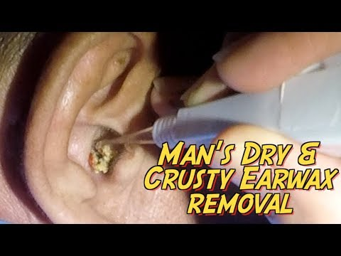 Man's Dry & Crusty Earwax Causing Ringing Of Ears Is Finally Removed
