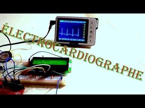 comment trouver un rythme cardiaque normal
