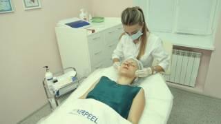 Биоревитализация в Diamond Laser